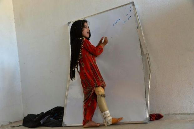 Hamisha Gul's granddaughter  six-year-old Marwa  lost her right leg in the rocket explosion