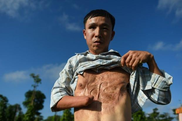 Vietnamese landmine victim Nguyen The Nghia in January 2020 shows his wounds caused by a munitions e...