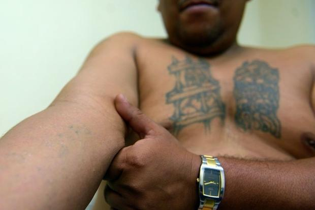 A former gang member of the Mara Salvatrucha (MS-13) gang shows scars from a deleted tattoo during a...