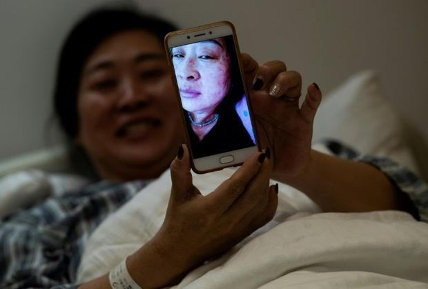 Wang Deyun says her skin infection  caused by a reaction to modern medicine for blood pressure  is c...